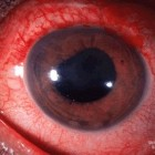 Uveïtis: Ontsteking uvea, middelste laag oog (oogontsteking)