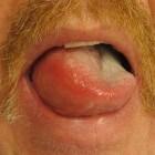 Angio-oedeem: zwelling van de lippen, oogleden of handen