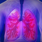 Longinfarct: Afsterven longweefsel door afsluiting slagader