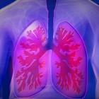 Reutelende geluiden (reutels) bij ademhaling door longziekte