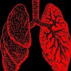 Pulmonale arteriële hypertensie: Aandoening aan de longen