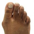 Bunion: oorzaken van pijnlijke bult aan zijkant grote teen
