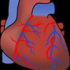Angiografie: Radiografisch beeld van de bloedvaten