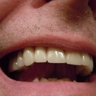 Tanden: Afwijkende kleuren (tandkleur) en vormen (tandvorm)