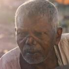 Lepra: Infectie met zenuwschade en symptomen aan ogen & huid