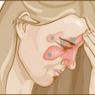 Granulomatose met polyangiitis (Wegener): Auto-immuunziekte