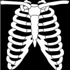 Costochondritis: Ontsteking ribkraakbeen met pijn op borst