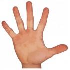 Pijn in vinger of vingers door verwondingen en aandoeningen