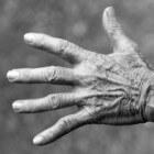 Stramme, pijnlijke handen: pijn in gewrichten hand en pols
