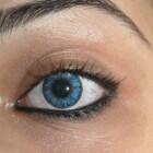 Acuut gesloten hoek glaucoom in oog: Symptomen & behandeling