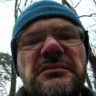 Rosacea: Huidaandoening met roodheid en zwelling in gezicht