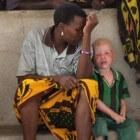 Albinisme: Afwijkingen aan ogen, huid en haar