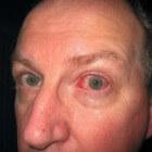 Oogafscheiding door ooginfecties, contactlenzen of oogletsel