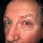 Oogproblemen bij reumatoïde artritis (ontsteking gewrichten)