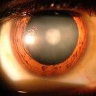 Congenitale cataract (staar): Vertroebeling van de ooglens