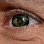 Subconjunctivale bloeding: Bloeding onder het oogbindvlies