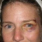 Blauw oog: Wijst soms op oogprobleem of hersenletsel