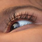 Blefarospasme: Kramp in het ooglid van één of beide ogen
