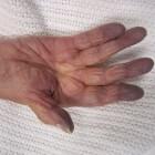 Cyanose: Blauwverkleuring van huid, nagels en lippen