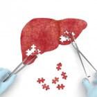 Leveraandoeningen symptomen: vergrote lever/geelzucht/kanker