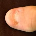 Nail patella syndroom: Afwijkingen aan nagels & knieschijven