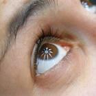 Pijn aan de ogen: oorzaken pijnlijke ogen of oogpijn