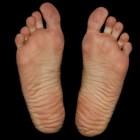 Gele voeten: Oorzaken van geelverkleuring voetzolen/tenen