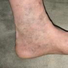 Eerste hulp bij bloedende spataderen (varices)