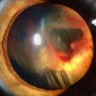 Glasvochtbloeding in oog: Plots verlies van gezichtsvermogen