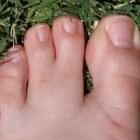 Syndactylie: Samengegroeide vingers en/of tenen