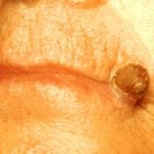 Actinische keratose: Huidletsels door blootstelling aan zon