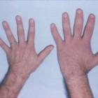 Acromegalie: Overproductie groeihormoon bij hypofysetumor
