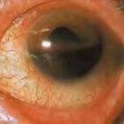 Hyfemie: Bloeding in voorste oogkamer