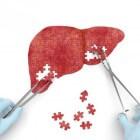 Leverfalen: symptomen oorzaak, behandeling en prognose