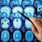 Uitzaaiingen in de hersenen: symptomen hersenmetastasen