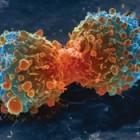 Uitzaaiingen van kanker in longen: symptomen en behandeling