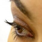 Gele kringen onder de ogen: oorzaken van gele oogkringen