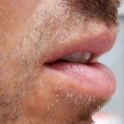 Granulomateuze cheilitis: Chronische zwelling van lippen