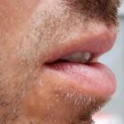 Lipkanker: Irritatie, pijn en bloedende knobbel op de lip