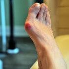 Pijn bij hallux valgus? Gebruik eens een tenenspreider