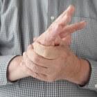 Stijve handen, polsen en voeten: door reumatoïde artritis