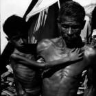 Marasmus: Vorm van ondervoeding, vaak bij kinderen