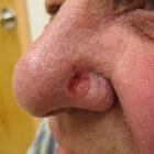 Basaalcelcarcinoom: Langzaam groeiende vorm van huidkanker