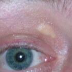 Xanthelasma: Gele cholesterolafzettingen rond de ogen