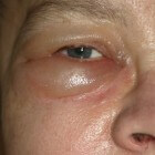 Gezwollen ogen & oogleden: Oorzaken, symptomen & behandeling