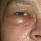 Gezwollen oogleden: Oorzaken, symptomen en behandeling
