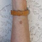 Bruine tot gele vlekken op de huid door ouderdomsvlekken
