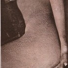 Ichthyosis vulgaris: Huidziekte met droge, schilferende huid