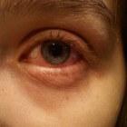 Oogontsteking: symptomen en behandeling ontstoken oog