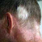 Witte vlekken op de huid of witte huidvlekjes: oorzaken